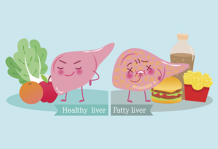 Learn about fatty liver disease from experts at HonorHealth