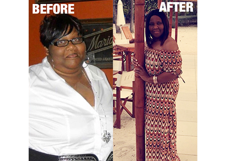 HonorHealth Bariatric Center - Banesha's before and after weight loss images