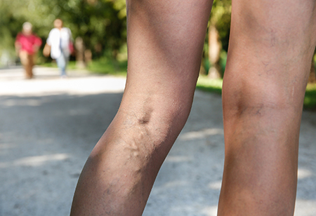 Varicose vein risk factors and treatment
