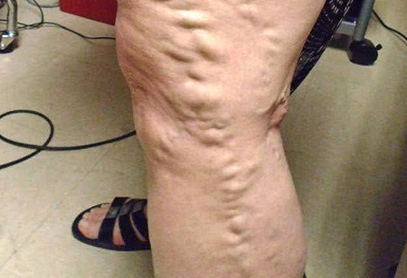 Treatment zaps varicose veins with laser
