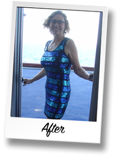HonorHealth Bariatric Center weight loss surgery story - Ann after surgery