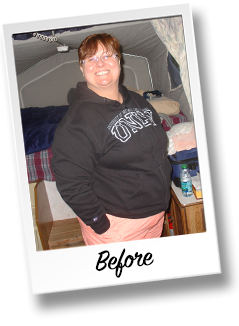 HonorHealth Bariatric Center weight loss surgery story - Ann before surgery