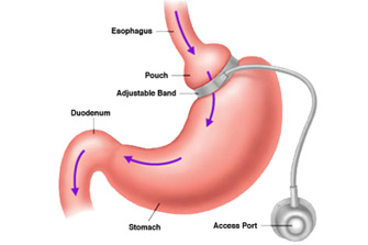 HonorHealth - Adjustable Gastric Band