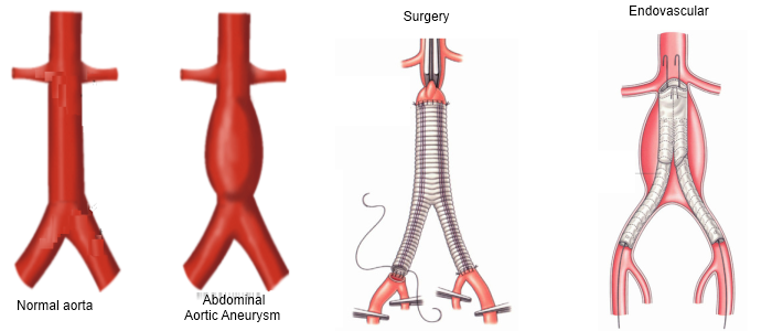 Aortic aneurysm surgery diagrams