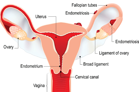Endometriosis | HonorHealth